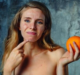 Potraviny a nápoje, které jsou strašákem pro vaši pleť